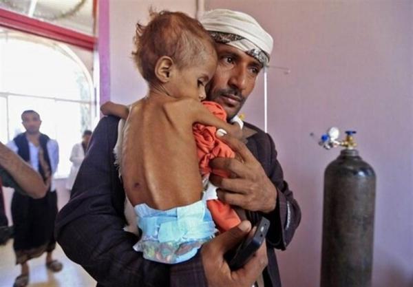 وزیر بهداشت یمن: نصف بچه ها یمن سوءتغذیه شدید دارند، سازمان ملل شریک جنایت های عربستان است