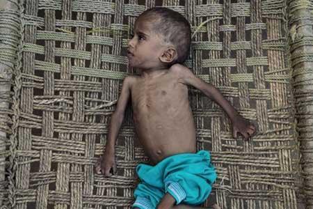 هر پنج دقیقه یک کودک یمنی می میرد