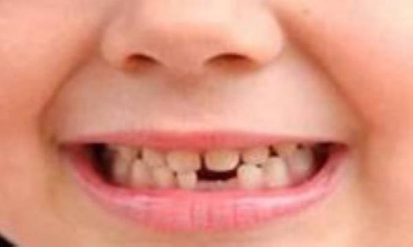 مراقبت از دندان بچه ها